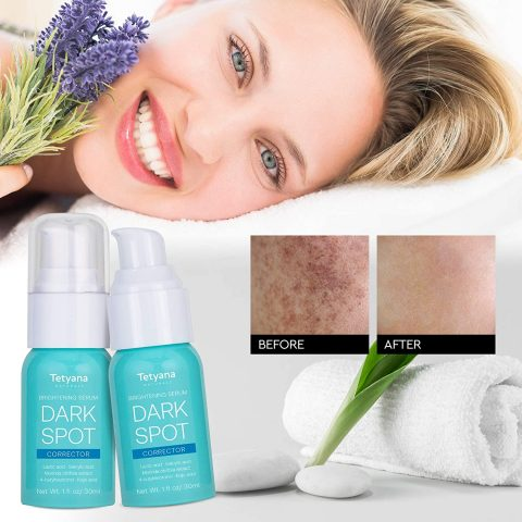Tetyana Dark Spot Corrector Brightening Serum For Face and Body-effective Ingredients with 4-Butylresorcinol (better than 2% Hydroquinone), Lactic Acid, Salicylic Acid, and Morinda Citrifolia extract